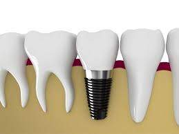 How dental clinics are helpful in overcoming toothache and other problems?