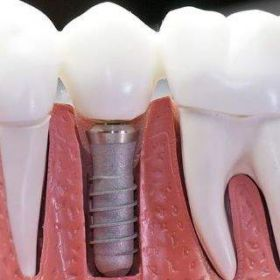 Dental Implant Cost Near Gilbert